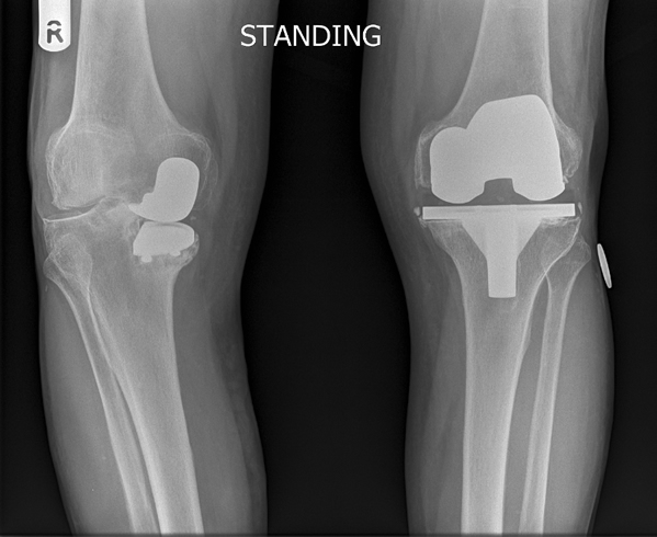Orthopaedic surgeon mr samuel parsons explains knee surgery x ray of failing medial uni compartmental knee and failing total knee replacement publicscrutiny Image collections