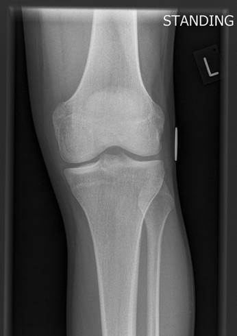 orthopaedic Surgeon Mr Samuel Parsons Explains Knee Pain
